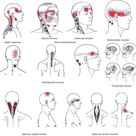Figure 1 from Myofascial Trigger Points and Sensitization An Updated Pain Model for Tension Type Headache   Semantic Scholar