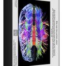 1000 Piece Puzzle. White matter fibres and brain, artwork