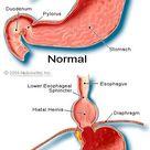 15 Hiatal Hernia Symptoms, Causes, Diet, Treatment & Surgery