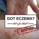 Eczema Cures