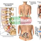 L5 Lumbar Spinal Fracture with Surgical Fixation   Doctor Stock