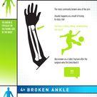 5 Most Commonly Broken Bones   Infographic