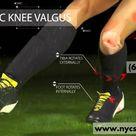 Dynamic Knee Valgus | Sports Medicine Doctor NYC