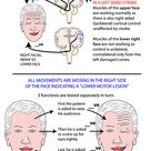 Head and Neck - Areas/Organs - Face - Facial nerve lesions