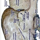 Pretty good picture of the sheep brain labeled.