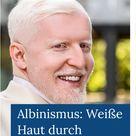 Albinismus: Weiße Haut durch Vererbung