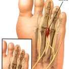 Pain in the ball of your foot could be Morton's Neuroma
