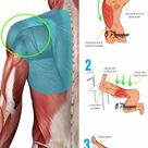You don't need to be a pro athlete to have problems with your rotator cuff