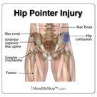 Hip Pointer Information & Treatments
