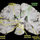 Slide2ff - Choroid plexus - Wikipedia, the free encyclopedia