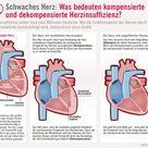 Dekompensierte Herzinsuffizienz
