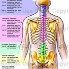 Spinal Chord Damage Infographic