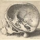 Framed Photo. Sectioned skull in profile to left with the left