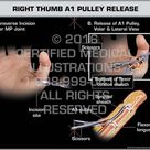 Right Thumb A1 Pulley Release
