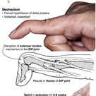 Mallet Finger Deformity