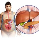 What Does the Inside of Your Digestive System Look Like?: The Liver
