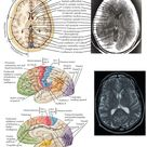 Functional Correlations and Visualization of Brain Structures