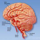 Brain Aneurysm - Medical Art Library