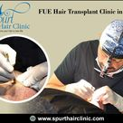 FUE Hair Transplant Cost in Pune Best Hair Transplant Clinic in Pune