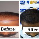 La densitae Hair Transplant Clinic Get 100 Possitive Results
