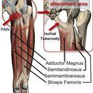 Sitbone Pain from Yoga Asana   Love Yoga Anatomy