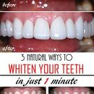 Teeth Whiteners