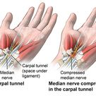Natural Remedies for Carpal Tunnel Syndrome | HealthFirst Spine & Wellness
