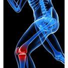 A1 Poster. Knee pain, conceptual artwork