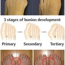 How to Prevent and Treat Bunions   AllDayChic