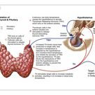 10 inch Photo. Relation of thyroid and pituitary gland