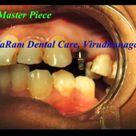 Non Surgical Implants - VaRam Dental Virudhunagar