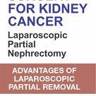 Key Hole Surgery For Kidney Cancer : Laparoscopic Partial Nephrectomy