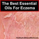 Essential Oils For Eczema