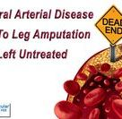 PAD Treatment in Spring Hill, FL for Peripheral Arterial Disease