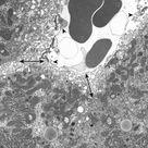 Hepatobiliary System and Exocrine Pancreas
