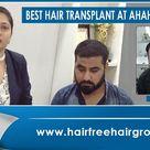 Best Hair Transplant In Ahmedabad    Hair Transplant In Pune    Full Density Result In 4 Months.