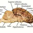 Sheep Brain Dissection Project Guide   HST Learning Center