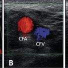 Basics of Angiography for Peripheral Artery Disease