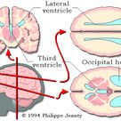 third ventricle on ultrasound - Google Search
