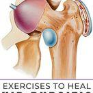 9 Best Exercises For Hip Bursitis (Video Included)