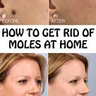 How To Remove Moles