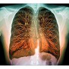 10 inch Photo. Lungs, 3D MRI scan
