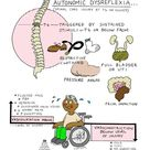 Spinal Cord Injuries Flashcards | Chegg.com