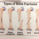 Types of Bone Fractures guide