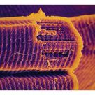 10 inch Photo. SEM of human striated muscle fibres
