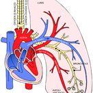 Types of Heart Diseases in Herndon, VA | Children's Heart Institute