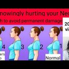 How to get rid of Neck hump/ Dowager's hump/Buffalo hump in hindi | How to cure hump on back of neck