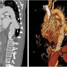 Sharing nice images of saccular aneurysm of the descending thoracic aorta, are rare and can be easily missed if asymptomatic. They are less common than fusiform aneurysms and may be more prone to rupture.   Computed tomographic angiography (sagittal view) and a 3-dimensional rendering show an aorta with intimal calcifications and chronic intramural hemorrhage.
