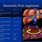 Liver ultrasound