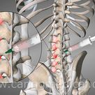 Prolotherapy for Back Pain
